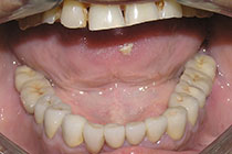 Single Tooth Implant